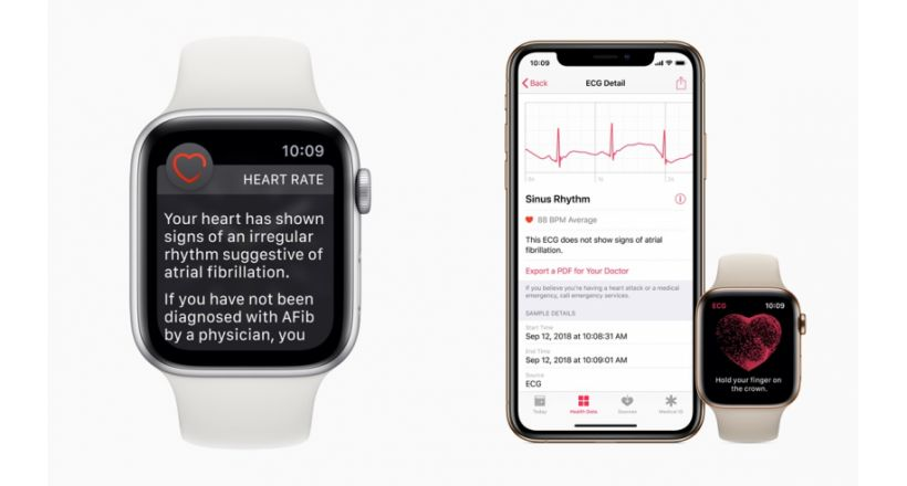 Already is available the application to ecgs and notification of irregular rhythm on Apple Watch
